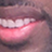 Fabolous's Teeth